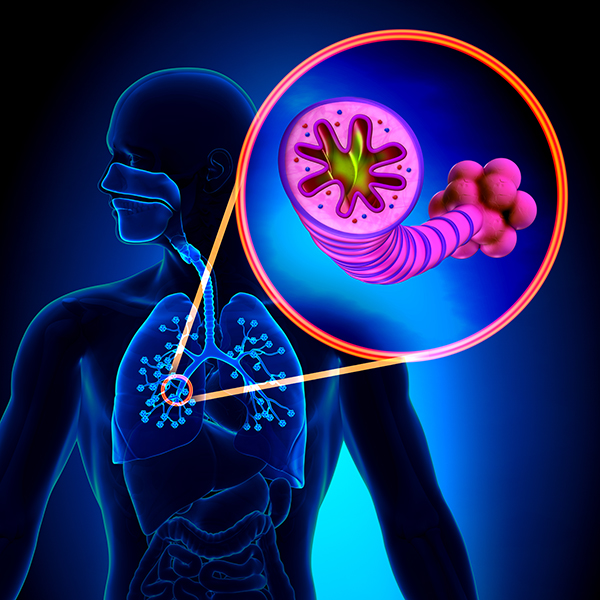 A Plan to Address COPD